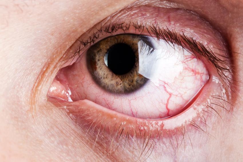 Homeopátia mint allergia kezelés